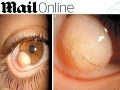 Chlpatá buľva: Mladíkovi (19) v oku vyrástli vlasy!