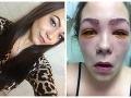 Tínedžerka si len chcela zafarbiť obočie: Takmer oslepla, hrôzostrašné FOTO