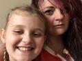 Matka si myslela, že dcérka (8) má chrípku: Horor v kúpeľni, keď jej TO vyliezlo z nohy