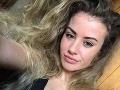 Šťavnaté FOTO modelky, ktorú uniesol kupliarsky gang: Drsná spoveď o zajatí, toto ju zachránilo
