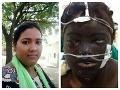 Strašidelné FOTO pomsty manžela: Ženu znetvoril na nepoznanie kvôli jedinej veci