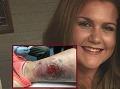 Dievčinu (21) v spánku niečo uhryzlo do nohy: Hrozivé FOTO rany, doteraz nedokáže chodiť