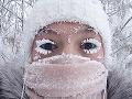 Odborníci varujú: Mrazy môžu aj zraniť, takto sa pred nimi správne ochránite