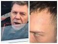 Incident, ktorý rieši celé Slovensko! Útok agresívneho vodiča alebo výzva na lynč: Kde je pravda?