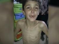 Takto vyzerá sedemročný sýrsky chlapec.