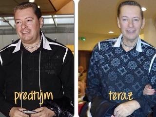 Peter Justin Topoľský výrazne schudol. Môžu za to zdravotné problémy.