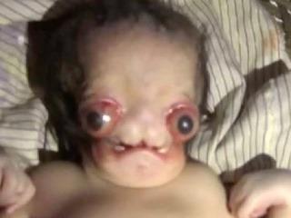 FOTO Narodilo sa bábätko,