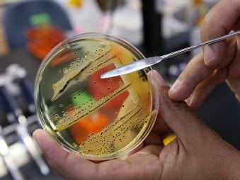 WHO zverejnila zoznam najnebezpečnejších baktérií: Môžu spôsobiť smrteľne nebezpečné infekcie