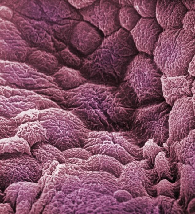 Zoskupené baktérie guľovitého tvaru. tieto sú vraj väčšinou