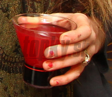 Fuj, to je nechutné: žena nášho speváka ukázala zohyzdené prsty
