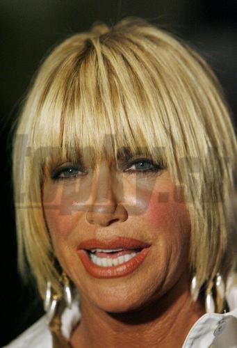 Suzanne somers z krok za krokom je z nej botoxová príšera
