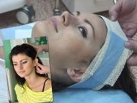 Miss Universe SR 2011 Kolesárová podstúpila operáciu odstávajúcich uší.