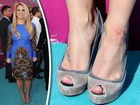 Britney Spears má ukážkovú postavu, no špatia ju zapálené ranky a chrasty.