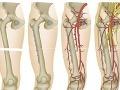 Španieli vykonali prvú transplantáciu oboch nôh na svete!