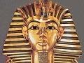 Škaredá pravda o Tutanchamónovi: Vieme, ako naozaj vyzeral, ohyzdné FOTO v článku!