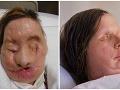 Znetvorená žena: Šimpanz jej odtrhol ruky a oslepil ju, aj tak sa chce vidieť!