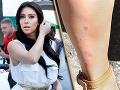 Kim Kardashian pred svadbou: Jej telo je samá vyrážka!