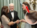 Tajomstvo jazvy princeznej Catherine odhalené!