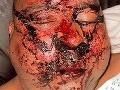 Pätnásti na jedného: Turistovi zlomili tvár na 4 miestach!