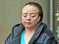 Syna nechala 8 mesiacov hniť v postieľke, čaká ju asi doživotie!