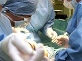 Zomrel prvý pacient, ktorému transplantovali všetky štyri končatiny
