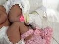 Dvojičky sa narodili v rozpätí niekoľkých minút: Ale v rôznych rokoch!