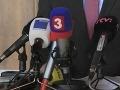 """Takto sa šetrí v RTVS: Za nové špongie """"vycálovali"""" 10-tisíc eur!"""