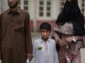 Iránec oblial dievčatko kyselinou a oslepil ho: Krutá odplata za brutálny čin - oko za oko!