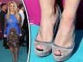 Nevábne chrasty Britney Spears: Jej vylepšené telo špatí kožná choroba!