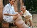 Číňanke narástla slonia noha: Je hrubšia, ako pás jej dcéry!