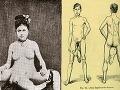 Najsexi pár 19. storočia: Muž s dvoma penismi a žena s dvoma vagínami