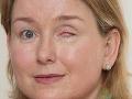 FOTO Učiteľke (42) huba rozožrala oko: Oslepla kvôli kontaktným šošovkám!
