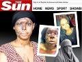 Na dievča (20) zaútočili kyselinou: Takto vyzerá jej znetvorená tvár!