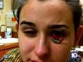 Tínedžerka takmer prišla o zrak: Do oka sa jej zavŕtal parazit!