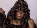 Rodinná tragédia: Neznámi páchatelia poliali kyselinou štyri sestry