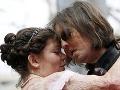 Príbeh dojemnej lásky: Muž bez tváre (27) sa oženil s popálenou ženou (29)