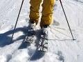 Desivá zrážka lyžiarov na Martinkách: Dolámané rebrá a bezvedomie