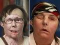 Medicínsky zázrak: Žene (44) znetvorenej lúhom vrátili tvár!
