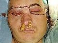Transplantácia tváre
