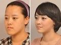 Šialená plastika v Južnej Kórei: Ženy zo seba robia zlovestného Jokera!