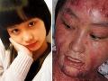 Študentka (17) odmietla bohatého spolužiaka: Znetvoril jej tvár!