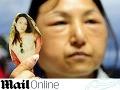 Xiao opuchla tvár do extrémnych rozmerov.