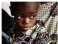 Podvýživa spôsobuje v rozvojových