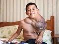 Chlapca (10) obrastá obrí nádor: Lekári ho liečia viagrou!