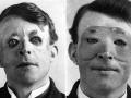 Prvé plastické operácie na svete: Pozrite si ich históriu a ako dopadli!