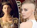 Otrasná premena krásnej kráľovnej: Má vyholenú polovicu hlavy!