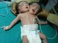 Rodičia zažili pri pôrode šok: Matke sa narodilo dieťatko s dvomi hlavami!