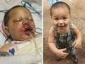 Hrôzostrašný záťah: Kukláči hodili granát do detskej postieľky, ťažko zranil chlapčeka!