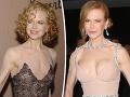 A túto plastiku stihla kedy? Plochá Nicole Kidman vytasila natrieskaný dekolt!