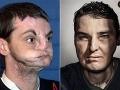 Richard (39) si odstrelil tvár: Unikátna transplantácia, teraz je z neho fešák!